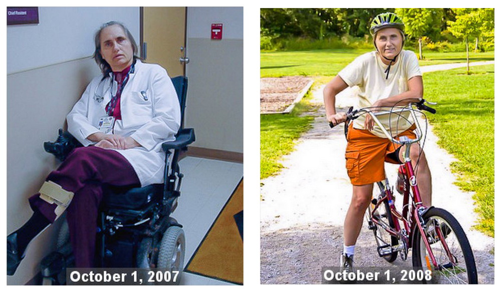 Terry was sentenced to a tilt-recline wheelchair with progressive Multiple Sclerosis, but today she bikes to work and teaches others to reverse degenerative conditions: http://bit.ly/twals